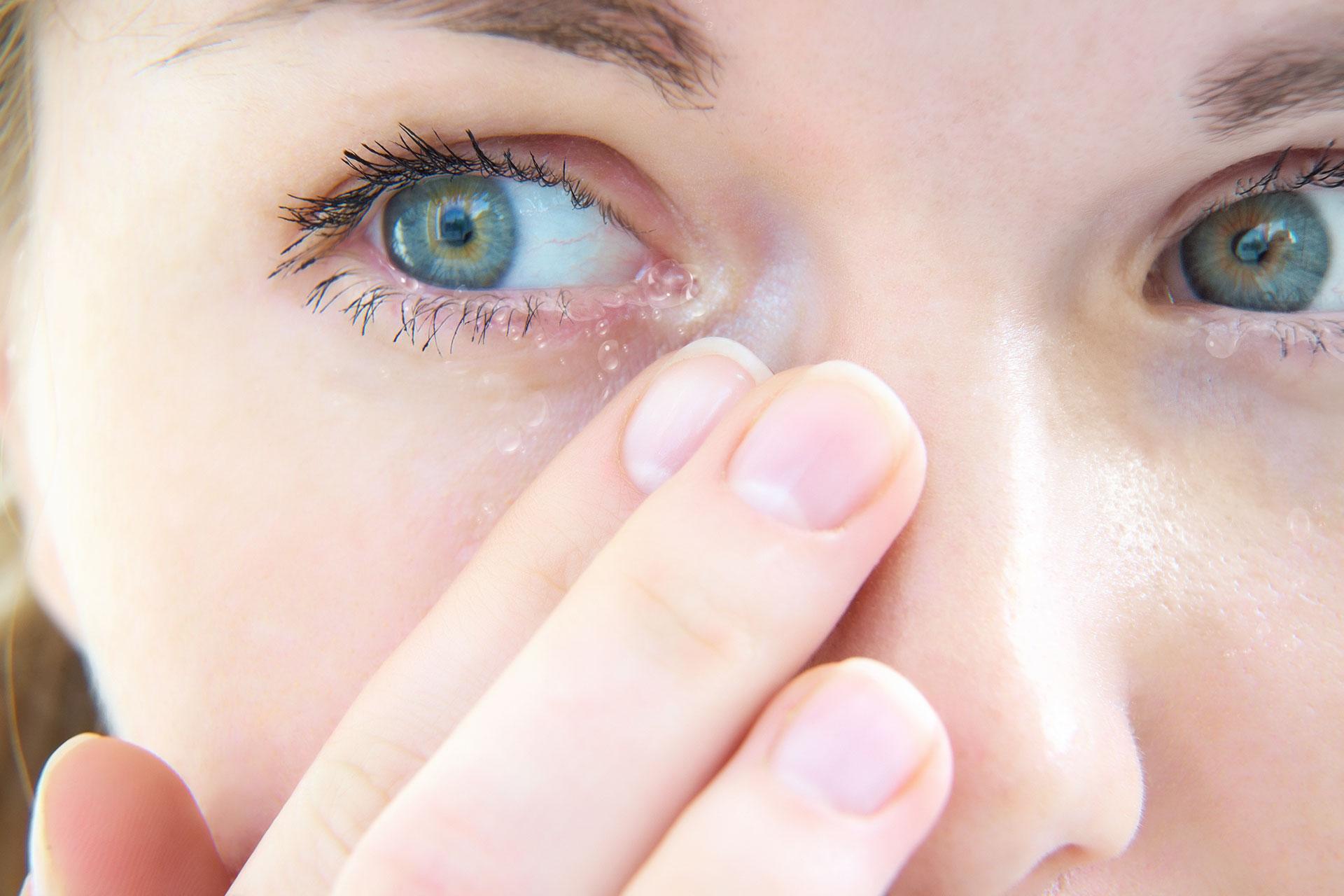 2882e1f949 Problema de salud: ojos llorosos